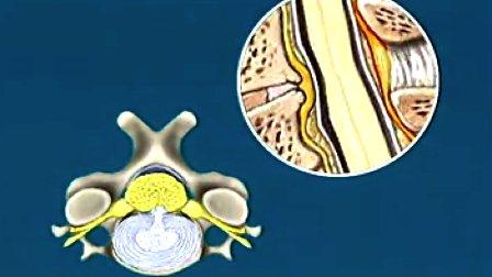 颈椎病的诊治_卫生部教材