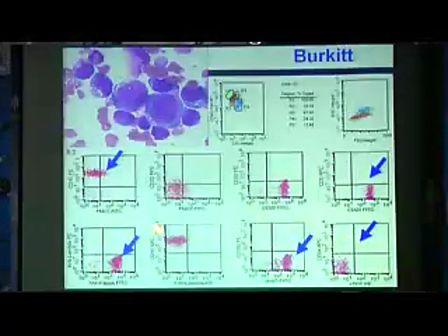 流式细胞术在血液科的主要应用