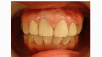 牙齒發黃發黑, 丑不堪言, 只需加點這個, 牙齒瞬間變白發亮